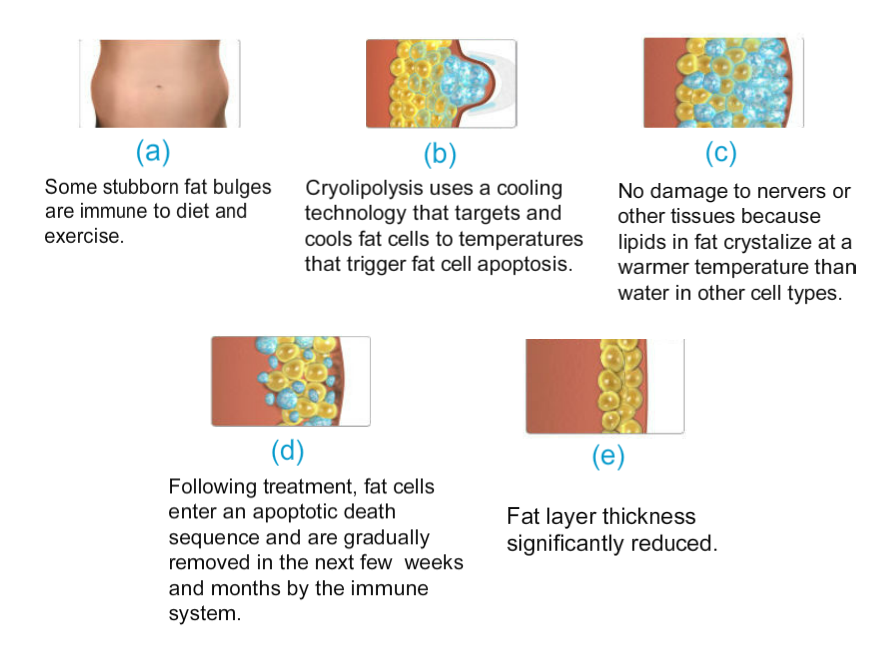how does cryolipo work?